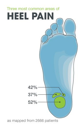 Most Common Areas of Heel Pain